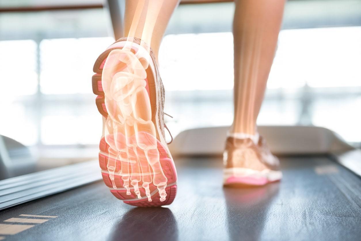 Hoe blessures vermijden op een loopband